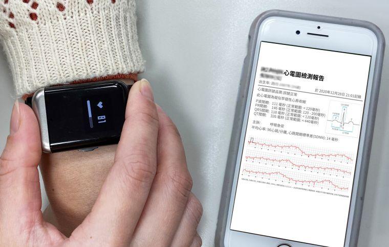 穿戴心電圖記錄器手錶每半小時主動偵測是否有心跳不規律的風險指標,Android 及iOS 雙平台用戶皆可下載相對應的APP。官方提供