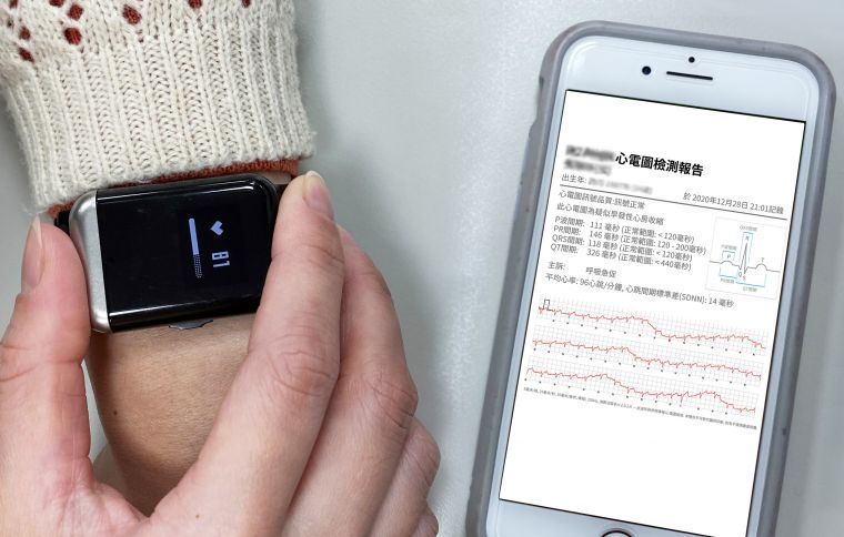 穿戴心電圖記錄器手錶量測。官方提供
