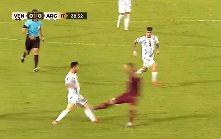 梅西小腿被嚴重踩踏受傷幸無大恙。摘自阿根廷足球隊推特